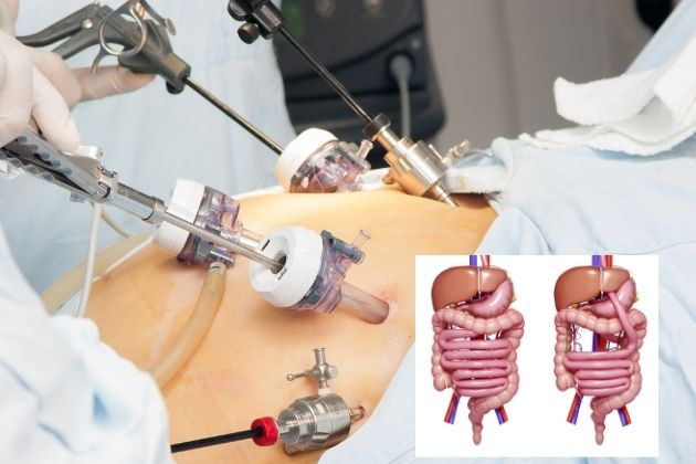 5 Steps in Restarting Weight Loss After Gastric Bypass Surgery